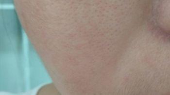 阿芙 马鞭草酮迷迭香纯露 125ML之 敏感肌毛孔粗大者实测报告