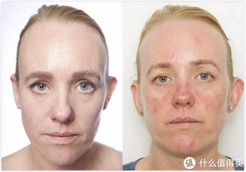 英国网友30天不卸妆前后对比