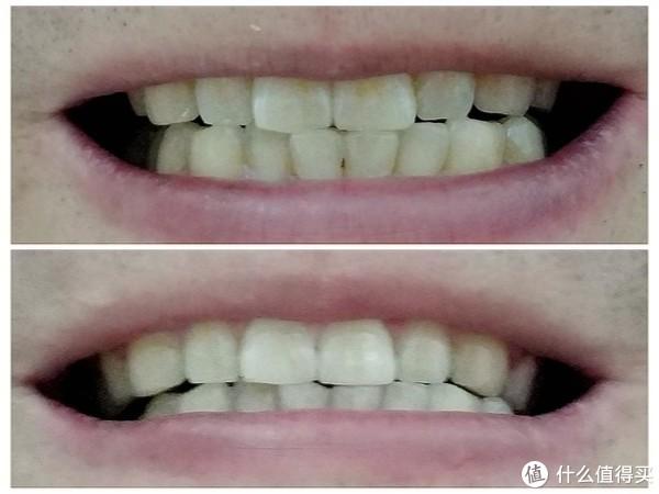 体验刷牙洁齿新方式—美国心诺X809智能冲牙器