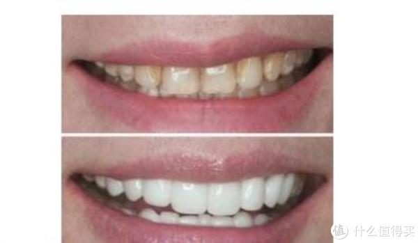 老烟民别怕笑起来尴尬,专用牙膏解决大黄牙