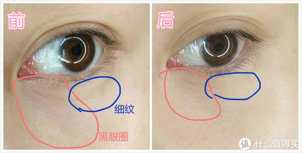 Dr Dennis Gross抗老/祛黑眼圈眼霜使用感受分享(附对比图)