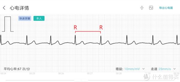 了解米动健康手环1S,关注心血管健康