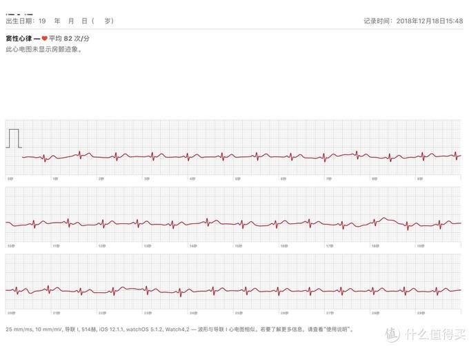 有了心电图,苹果手表S4才算完整