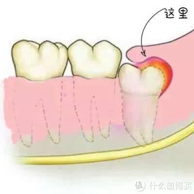 智齿盲袋、牙结石别来烦我啦!美国心诺X628洗牙器开箱!