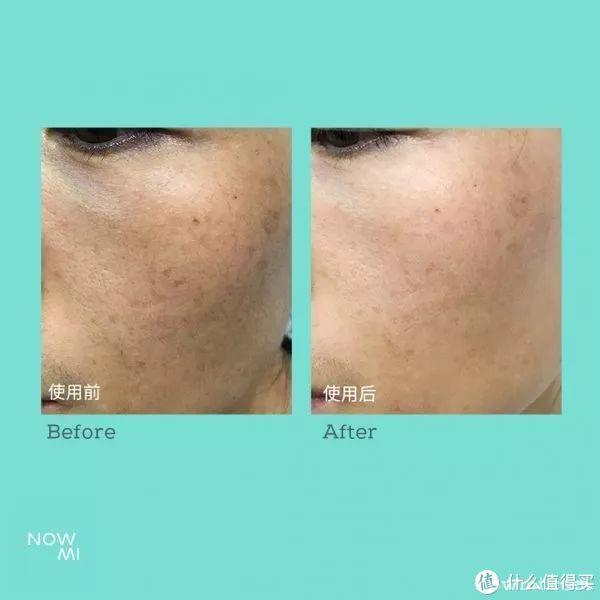 面部皮肤氧合护理
