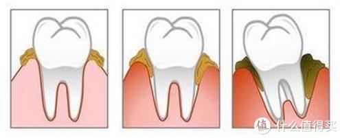 一款优秀的口腔清洁工具—零一冲牙器详细测评