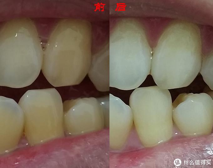 每天贴一贴,牙齿美白能实现?小丁30天坚持告诉你结果!