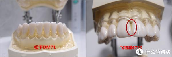 王牌对王牌,谁才是真正的入门级电动牙刷首选!大厂终极PK赛