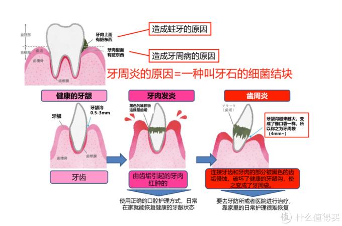 水牙线真的有用吗:松下 EW1511 便携冲牙器评测