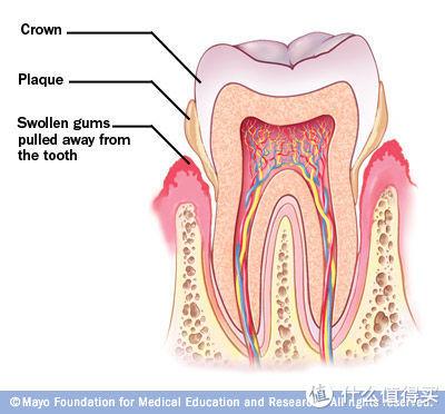 为牙齿健康投资值不值?一篇文章读懂如何选购电动牙刷