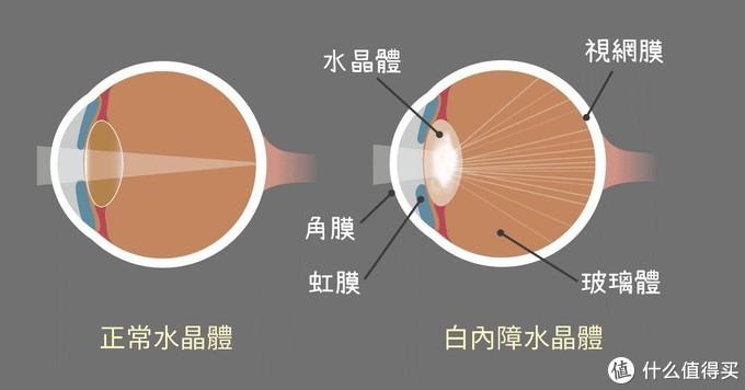 """【科普】眼睛也会""""见光死""""?生活中对眼睛有害的光线大揭秘,不得不防!"""