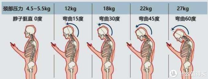 站姿对颈椎的影响