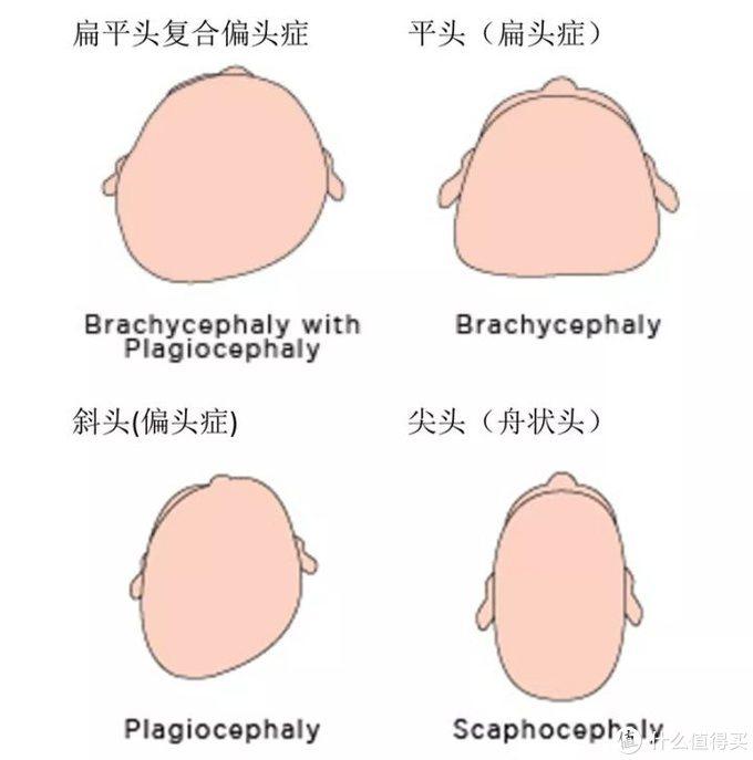 不同类型的偏头、扁头