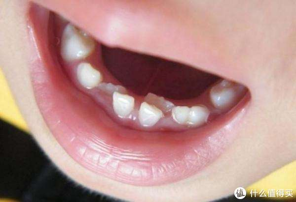 孩子不爱刷牙?试试这款酸奶味的牙膏