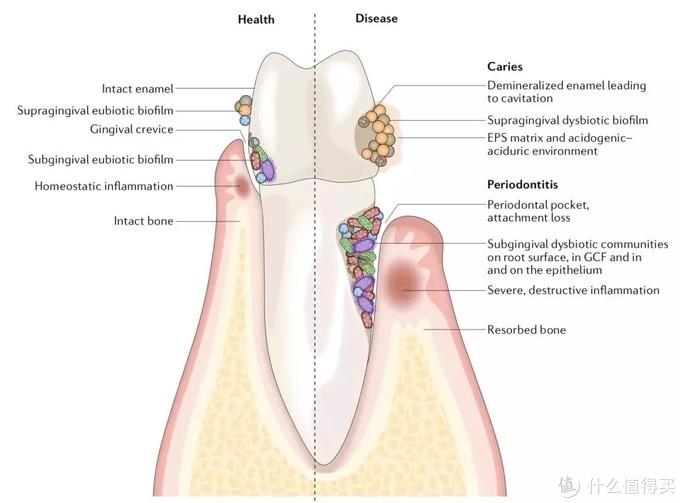 牙齿表面菌群差异,左半部分为健康牙齿,右半部分为有疾病的牙齿