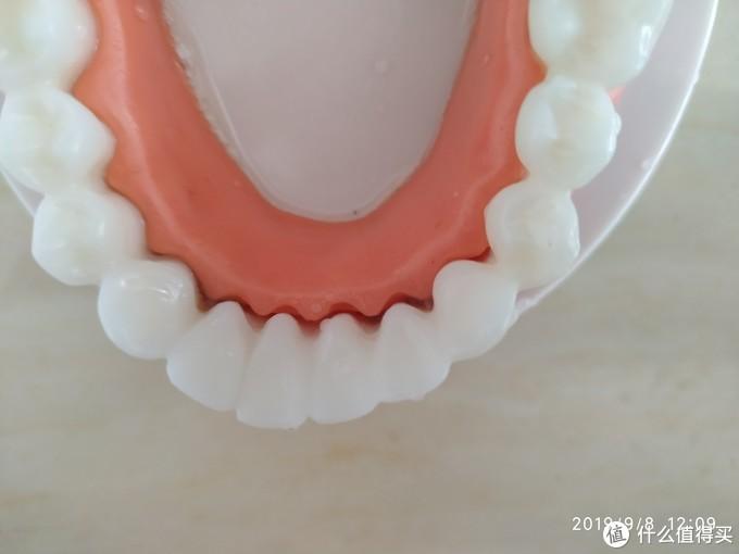 门牙内侧牙龈沟深处有少许残留