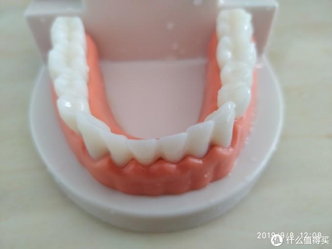 牙齿外侧牙龈沟清洁较好