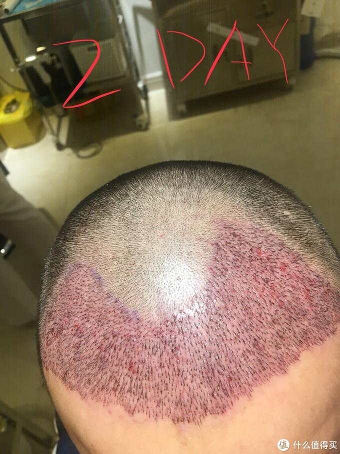 清理了一下学籍之后的情况,一根根头发已经种上去了哦