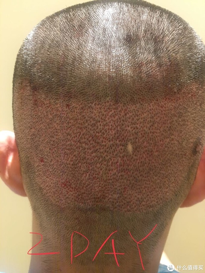 密集事物恐惧症最怕~红色的点点就是挖出来的毛囊的地方!