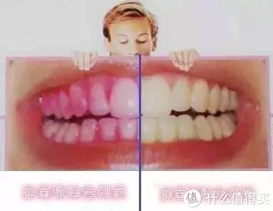 牙菌斑存在的口腔位置