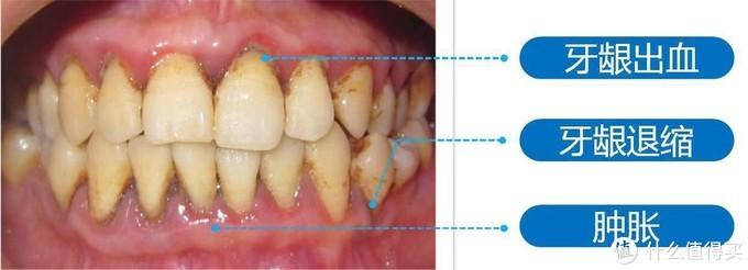 牙周病的系列症状
