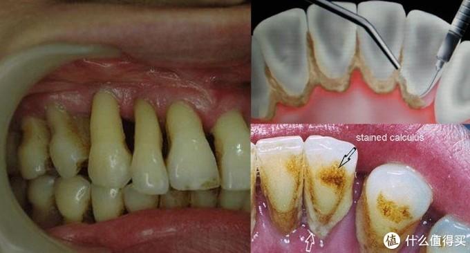 刷牙的正确打开方式,关于牙刷和牙膏的选择及牙齿小问题!