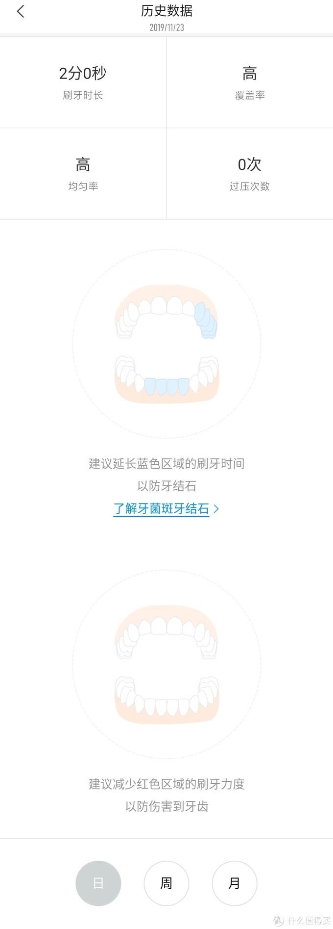 人生第一支电动牙刷——米家T500一个月使用体验