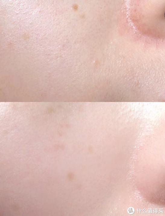 看看我给我自己拍的细节对比图,鼻侧的发红效果特别明显
