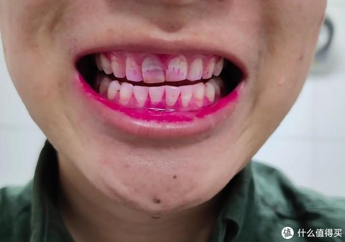 牙菌斑指示剂实测!贝医生S7&飞利浦&欧乐B哪个刷的最干净