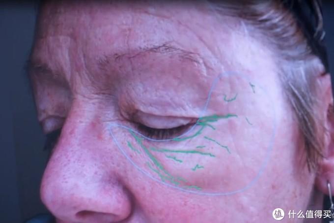 绿线代表皱纹,左脸,主要在眼睛下面