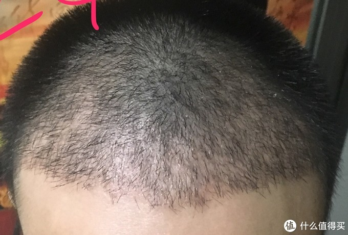 植发后的脱发期(置换期)