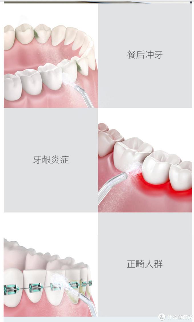 直白无线洁牙器,简单好用,再也不用带着牙线到处跑了
