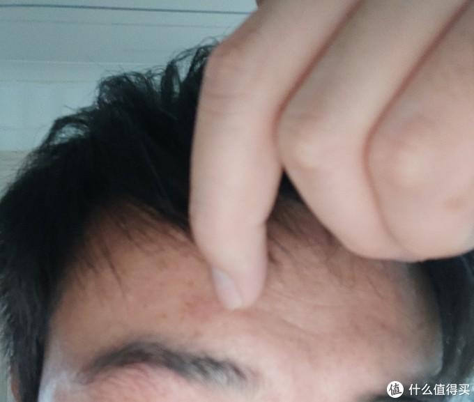 家庭妇男:乐敦CC精华新痘印不定期打卡报告