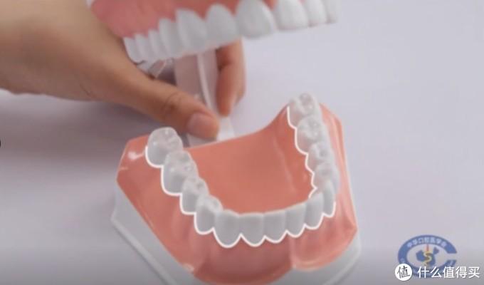 首先,刷牙的重点是清除图中白色线条部位的菌斑(脏东西)