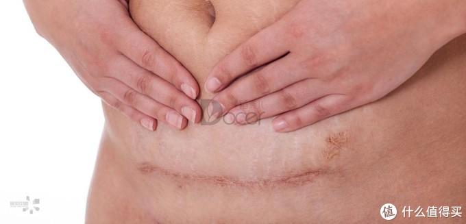剖腹产后吃什么恢复快?伤口多久愈合呢?最强产后恢复攻略