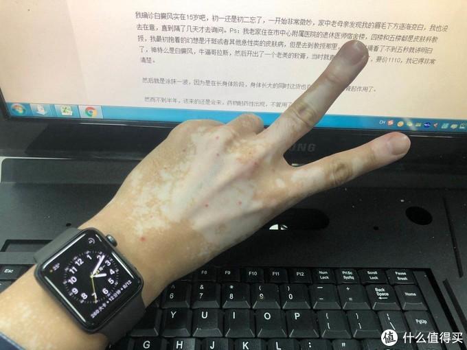 这只是一只手的症状,手机原片直出没有任何PS