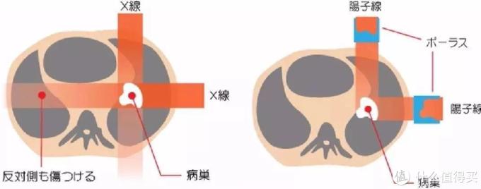 ▲普通放疗和粒子治疗方式对比