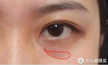 黑眼圈总是消不掉怎么办?可能是方法没用对,试试这样做