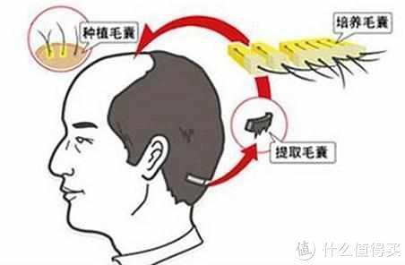 别人脱单你脱发,秃顶的你如何自救!