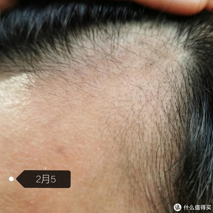 使用米诺地尔酊两个半月生发(眉毛)记录