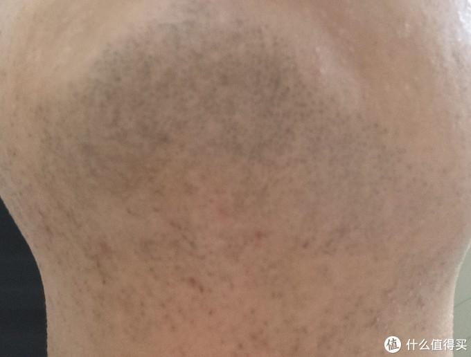 剃须后的下巴