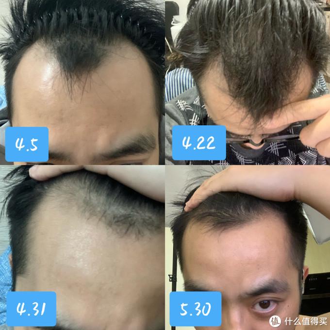 激光生发帽是不是智商税?它真的可以拯救脱发吗?