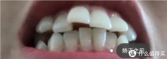 矫正牙齿是怎样的体验大概多少钱?