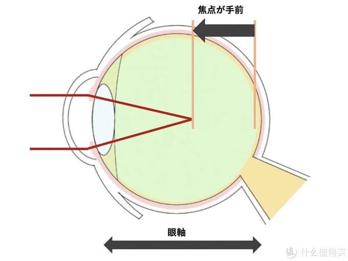 """治疗近视眼镜在美进行临床试验,号称可缩短""""眼轴"""""""