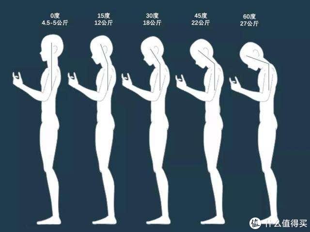 别把探脖儿驼背不当回事儿 有可能是得了上交叉综合症
