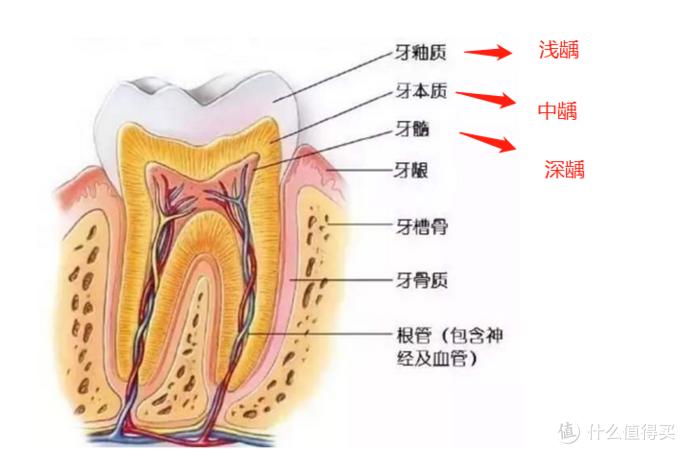 主要是看龋齿伤害到的部位。如果是没有龋穿牙釉质,基本上补牙是不会疼的,而且危害也比较小。