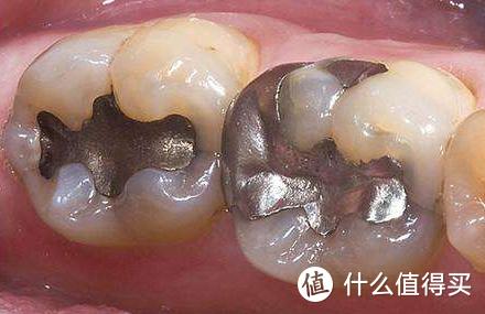 我经历过的牙科治疗:龋齿、拔牙、立事牙、根管治疗、烤瓷牙、儿童牙齿损伤