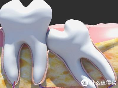 人间惨剧,孕期智齿发炎、哺乳期一口大黄牙,遇到这些问题该怎么办?我的牙齿护理清单,请收好!