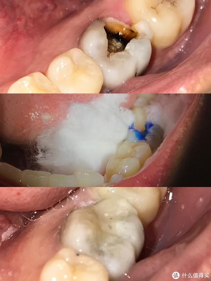 述说十年来在牙齿上的坎坷经历——拔智齿/拔多生齿/根管治疗/牙冠/洗牙,我知道的全都告诉你