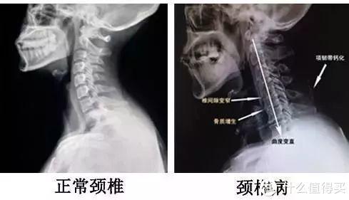 399元拥有24小时服务的颈椎按摩大师——荣耀亲选Jeeback脊安适颈椎按摩器试用体验
